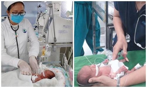 Cứu sống trẻ sinh non 0,8kg, bị viêm phúc mạc do thủng tạng