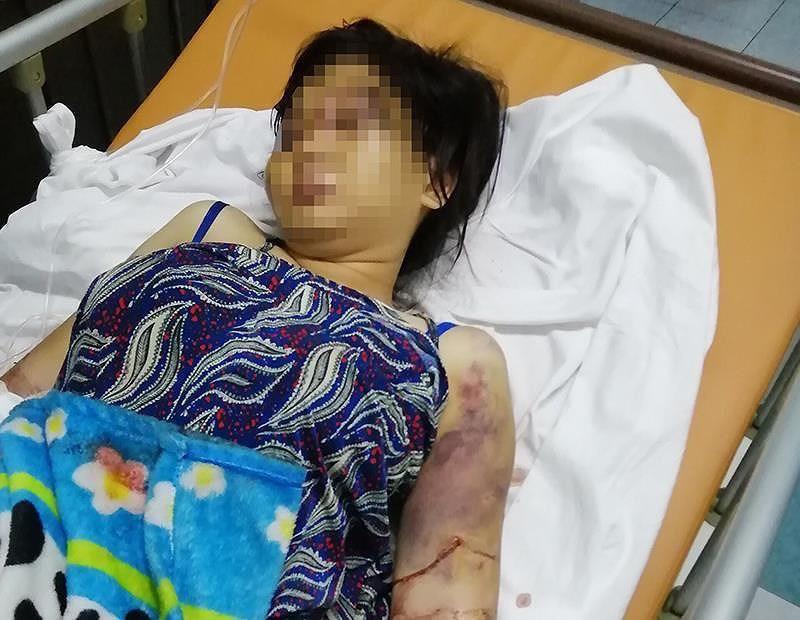Diễn biến mới nhất vụ cô gái 18 tuổi bị tra tấn như thời trung cổ đến sảy thai