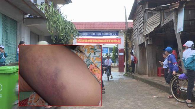 Vụ cô giáo đánh học sinh lớp 3 bầm tím đùi ở Đắk Lắk: Tạm đình chỉ 3 tháng