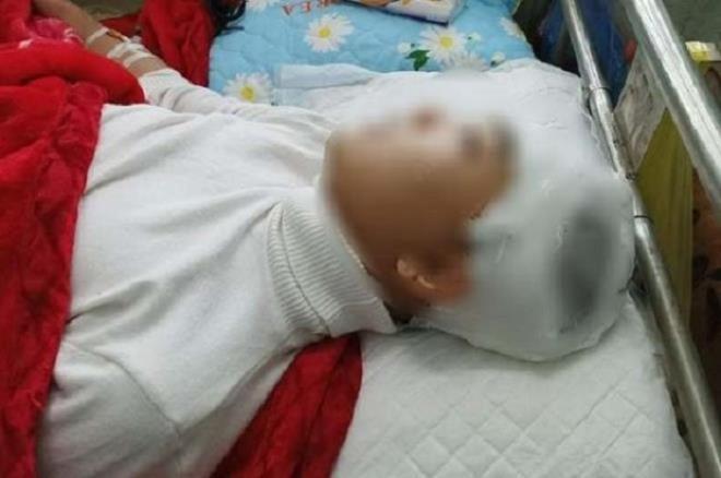 Thông tin mới nhất vụ nam sinh lớp 11 bị bạn đánh chấn thương sọ não ở Thanh Hóa