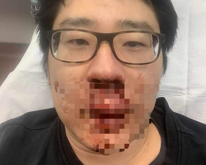 Nam giảng viên Trung Quốc bị tấn công giữa ban ngày ở Anh, lý do khiến nhiều người phải lo ngại