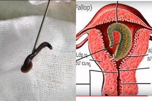 Tin tức đời sống mới nhất ngày 12/9/2019: Bé gái 8 tuổi bị đỉa chui vào trong âm đạo